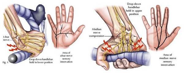 ulna nerve